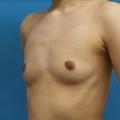 脂肪注入との併用 2