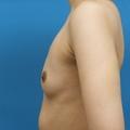 脂肪注入との併用 3