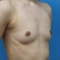 脂肪注入との併用 5