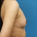 脂肪注入との併用 4