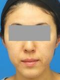 脂肪増殖注射(頬前・ホウレイ線・口横) 1
