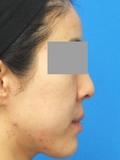 脂肪増殖注射(頬前・ホウレイ線・口横) 4