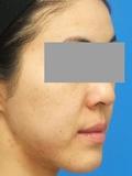 脂肪増殖注射(頬前・ホウレイ線・口横) 5