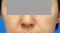 脂肪増殖注射 (頬前・ホウレイ線・口横) 6