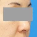 脂肪増殖注射 (頬前・ホウレイ線・口横) 8