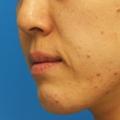脂肪増殖注射 (頬前・ホウレイ線・口横) 10