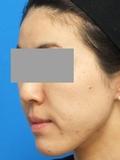 脂肪増殖注射(頬前・ホウレイ線・口横) 2