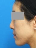 脂肪増殖注射 (頬前・ホウレイ線・口横) 3