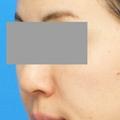 脂肪増殖注射 (頬前・ホウレイ線・口横) 7