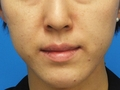 脂肪増殖注射 (頬前・ホウレイ線・口横) 9