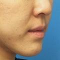 脂肪増殖注射 (頬前・ホウレイ線・口横) 11