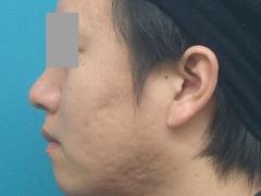 2010_0104_045943AB.JPGのサムネール画像