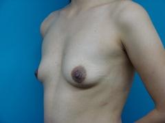 2010_1210_035912AA.JPGのサムネール画像