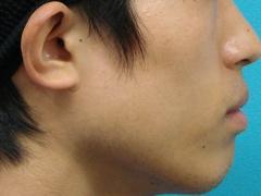 2010_0919_023432AA.JPGのサムネール画像