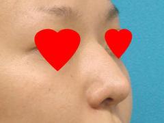 endoprosthesisnosebefore15B15D.jpgのサムネール画像